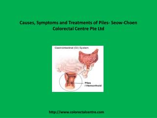 Causes, Symptoms and Treatments of Piles