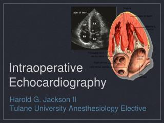 Intraoperative Echocardiography