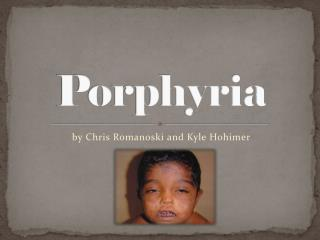 PPT - Porphyria PowerPoint Presentation - ID:517011