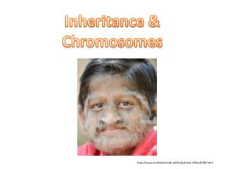 Inheritance & Chromosomes