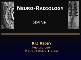 Neuro -Radiology