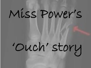 Miss Power's  'Ouch' story