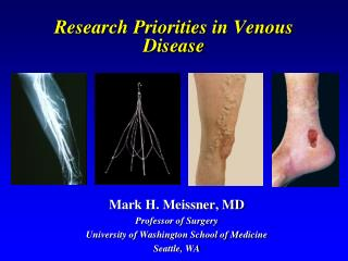 Research Priorities in Venous Disease
