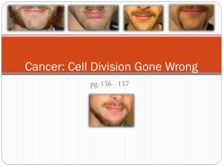 Cancer: Cell Division Gone Wrong
