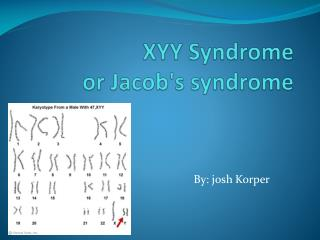 XYY Syndrome or Jacob's syndrome