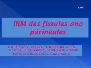 IRM des fistules  ano  périnéales