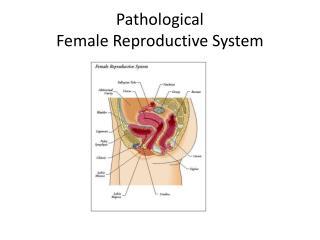 Pathological Female Reproductive System
