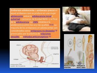 Signos y síntomas Signos presuntivos: Falta de menstruación, amenorrea.