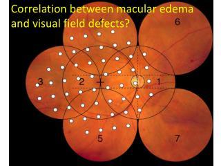 Correlation between macular edema and visual field defects?
