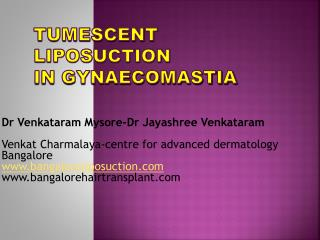 Tumescent  Liposuction in  Gynaecomastia