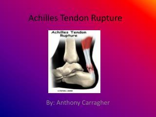Achilles  T endon Rupture