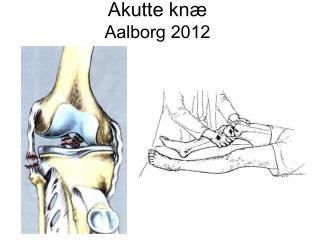 Akutte knæ Aalborg 2012