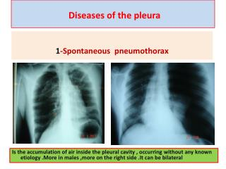Diseases of the pleura