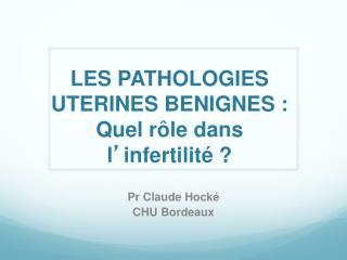 LES PATHOLOGIES UTERINES BENIGNES :  Quel rôle dans l ' infertilité ?
