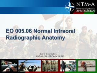 EO 005.06 Normal Intraoral  Radiographic Anatomy