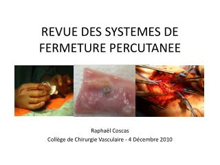 REVUE DES SYSTEMES DE FERMETURE PERCUTANEE