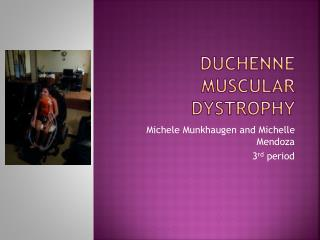 Duchenne M uscular Dystrophy