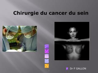 Chirurgie du cancer du sein