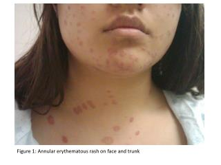 Figure 1: Annular erythematous rash on face and trunk
