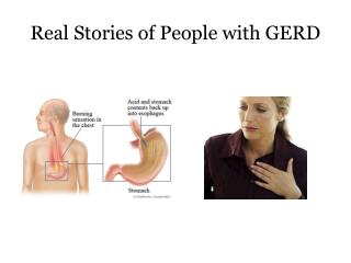 Real Stories of People with GERD