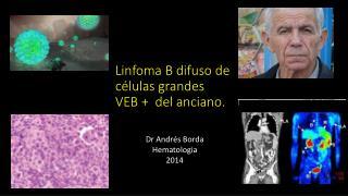 Linfoma B difuso de células grandes  VEB +  del anciano.