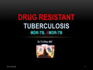 Multidrug resistant tuberculosis