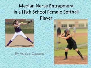 Median Nerve Entrapment in a High School Female Softball Player