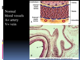 Normal  blood vessels A= artery V= vein