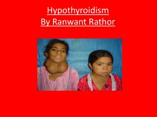 Hypothyroidism By  Ranwant Rathor