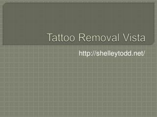 Tattoo Removal Vista.