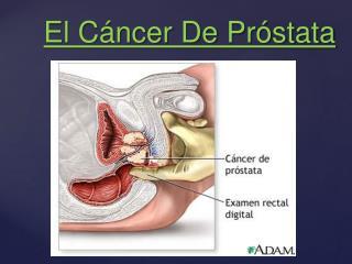 El Cáncer De Próstata