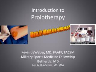 Introduction to  Prolotherapy