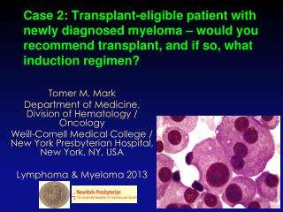 Tomer M. Mark Department of Medicine, Division of Hematology / Oncology