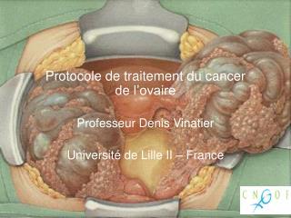 Protocole de traitement du cancer de l'ovaire Professeur Denis  Vinatier