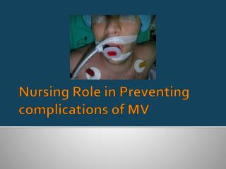 Nursing Role in Preventing complications of MV