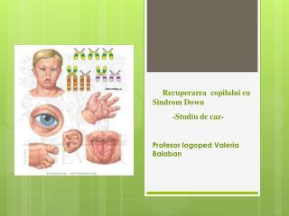 Recuperarea copilului  cu  Sindrom Down - S tudiu de  caz -