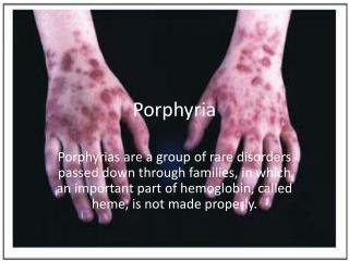 Porphyria