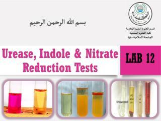 Ureas  Test