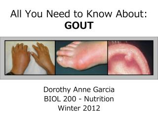 All You Need to Know About:  GOUT