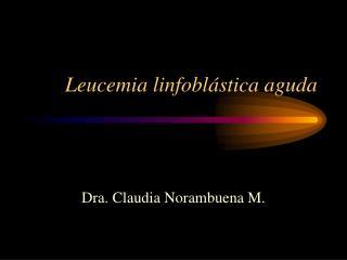 Leucemia linfobl stica aguda