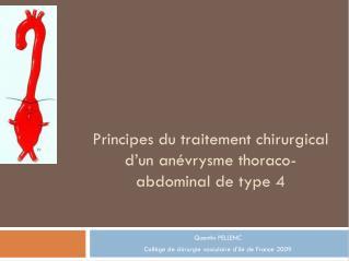 Principes du traitement chirurgical d'un anévrysme thoraco-abdominal de type 4