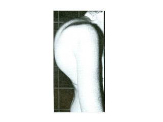 DEGENERATIVE OSTEOARTHRITIS