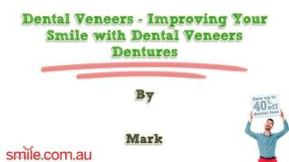 ppt 10944 Dental Veneers Improving Your Smile with Dental Veneers Dentures
