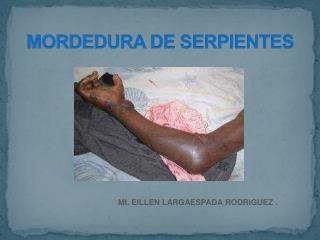MORDEDURA DE SERPIENTES