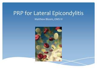 PRP for Lateral Epicondylitis