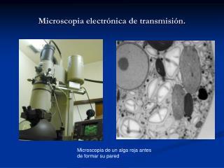 Microscopia electrónica de transmisión.