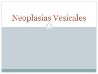 Neoplasias Vesicales