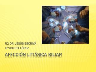 Afección litiásica biliar