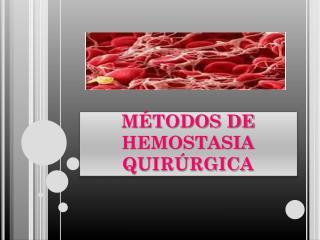 MÉTODOS DE HEMOSTASIA QUIRÚRGICA