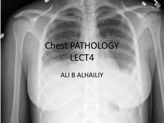 Chest PATHOLOGY LECT4